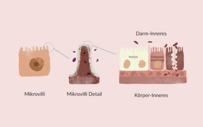 Leaky-Gut-Syndrom: Was passiert, wenn der Darm durchlässig ist?